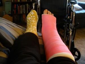 Foot in cast 2015